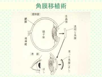 角膜移植術