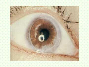 深層角膜移植術施工の例