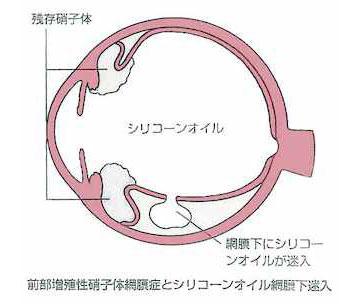 黄斑円孔02