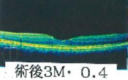 術前3M視力0.4