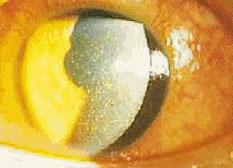 角膜表層炎