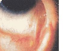 薬剤起因性偽眼類天疱瘡